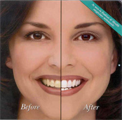 Night White Teeth Whitening Dr. Steven Goldstein