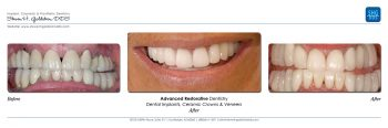 Advanced Restorative Dentistry Dr. Steven Goldstein Dentist Scottsdale, AZ