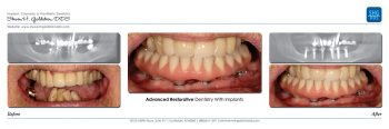 Advanced Restorative Dentistry & Implant Dentistry Dr. Steven Goldstein Dentist Scottsdale, AZ