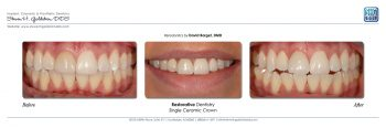 Restorative Dentistry With Single Ceramic Crown