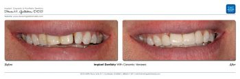 Implant Dentistry Dr. Steven Goldstein Dentist Scottsdale, AZ