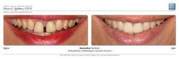 Restorative Dentistry With Orthodontics, Teeth Whitening & Ceramic Crowns