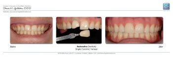 Restorative Dentistry Single Veneer Feldspathic Porcelain Dr. Steven Goldstein Dentist Scottsdale, AZ