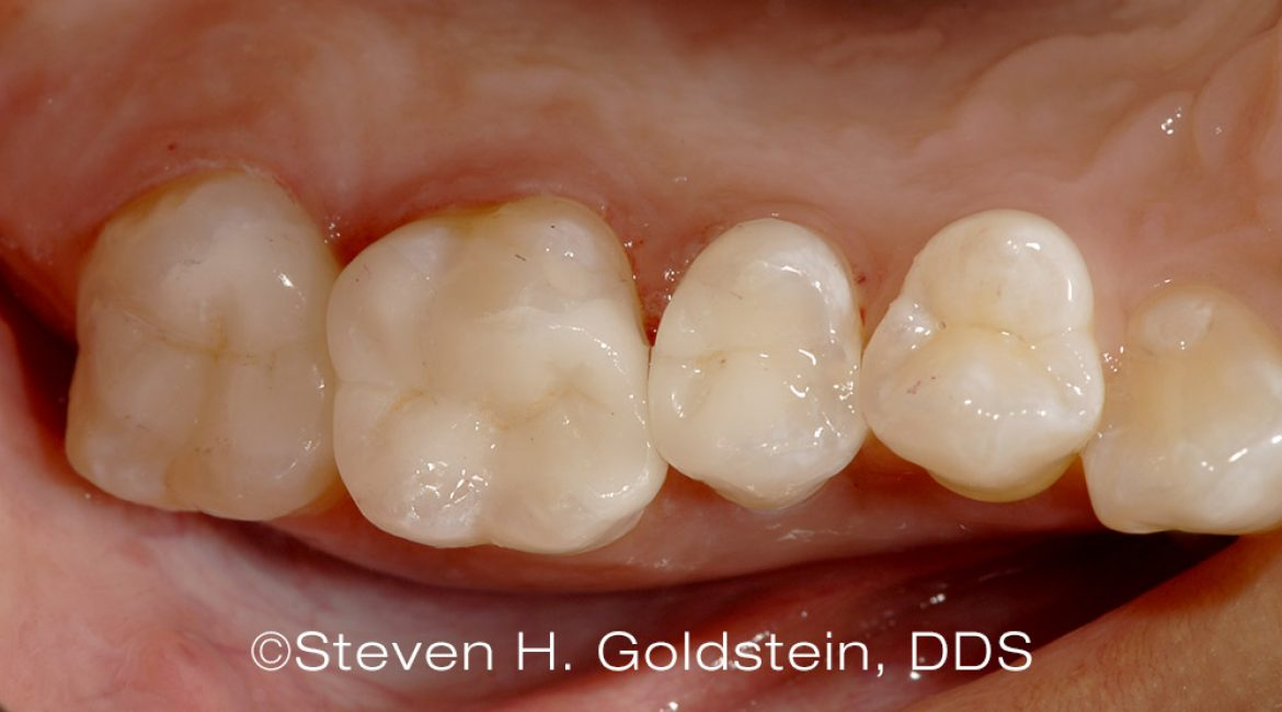 Dental Case of the Month – Bonded Ceramic Inlays