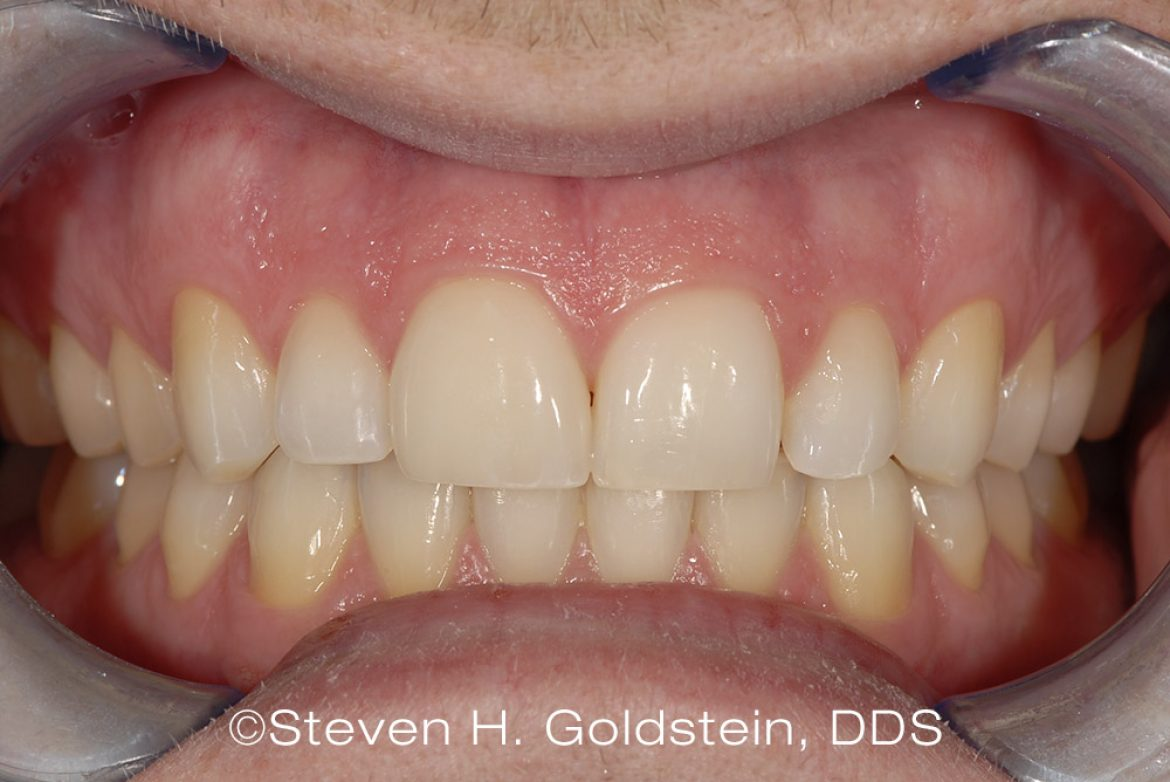 Dental Case of the Month – Single Ceramic Veneer Dental Restoration