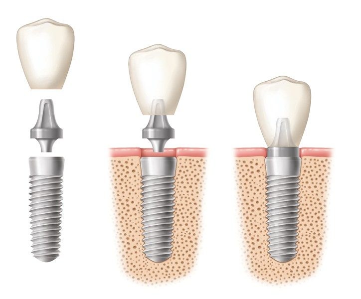 Dental Implant and Restorative Dentistry Workshop Seminars by Dr. Steven Goldstein in Scottsdale, Arizona