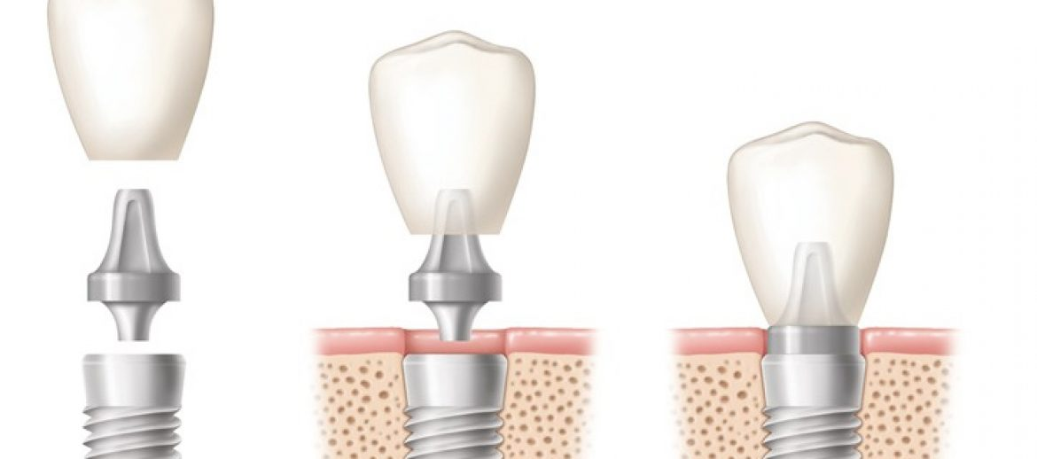 Dental Implants Scottsdale, Arizona